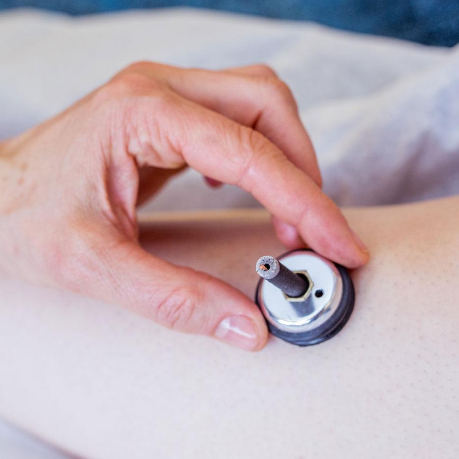 Acupuncture Accessories